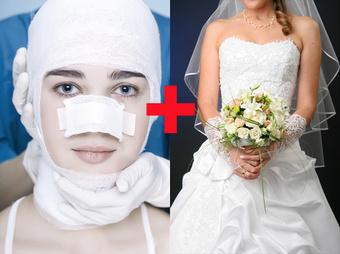 Cos'è il wedding surgery: il ritocco prematrimoniale