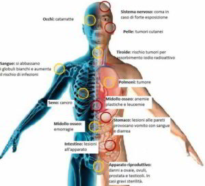 Effetti delle radiazioni nucleari sull'uomo e sulla natura: le radiazioni ionizzanti