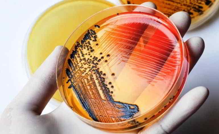 Allarme contaminazione da salmonella in Italia