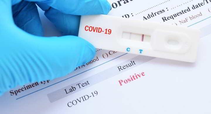 I test per il covid 19 o coronavirus